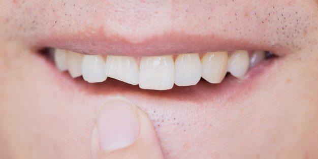 Slomili ste zub?